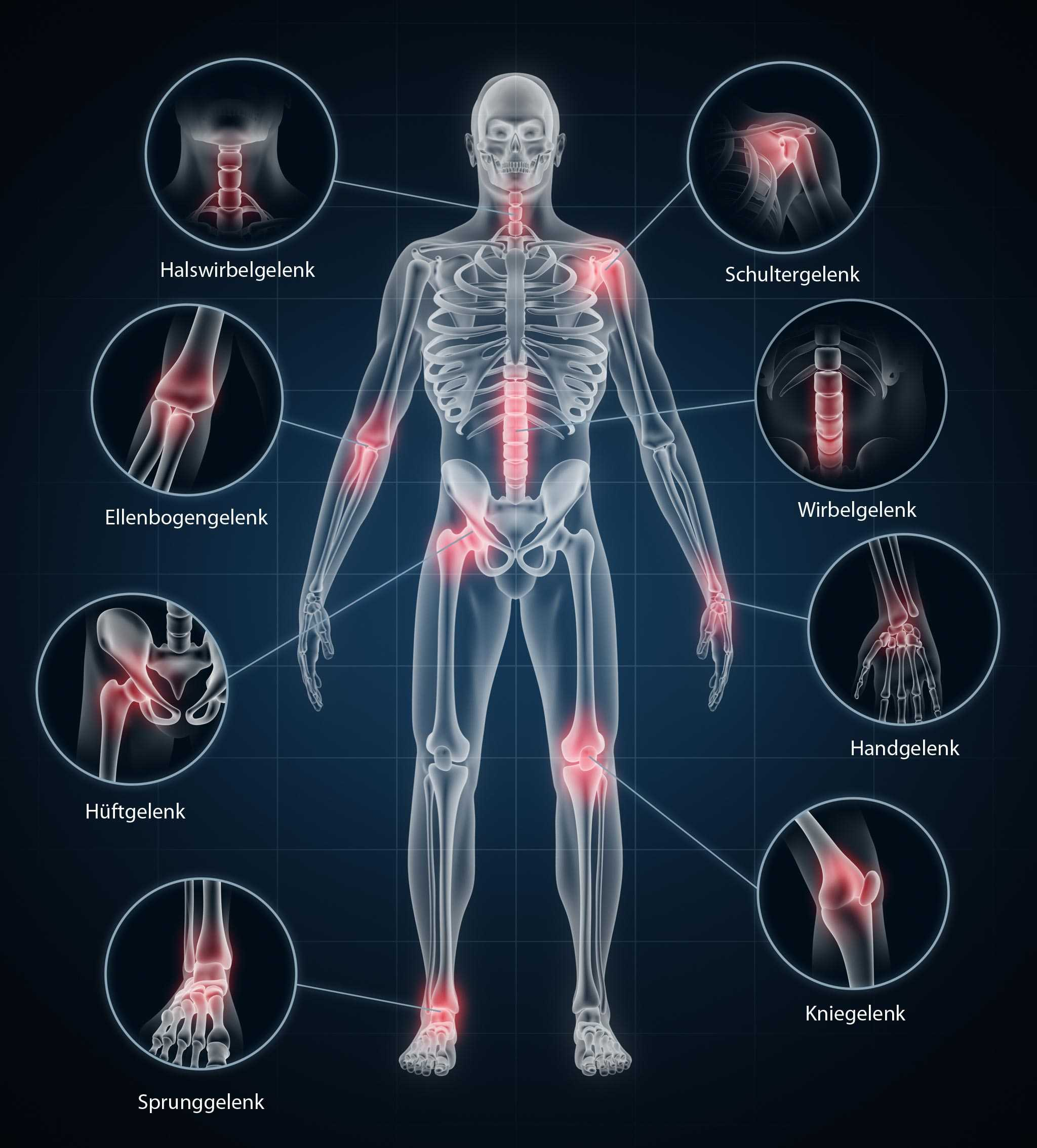Schmerzerapie bei gelenkschmerzen und rückenschmerzen